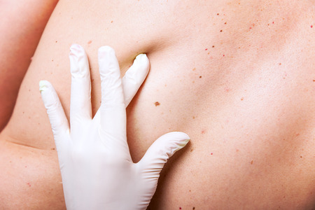 DERMATOLOGY: skin examination with lot of moles