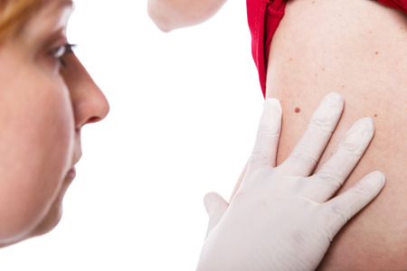 cancerous: female doctor examine skin with moles Stock Photo