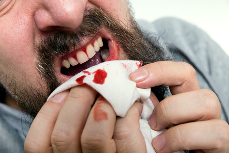a man is suffering about gums bleeding