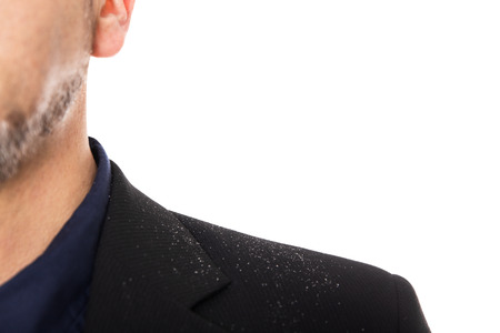 close up from a man with dandruff, isolated on white