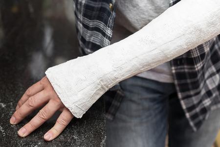 splint: hombre con el brazo lesionado se está inclinando en una mesa