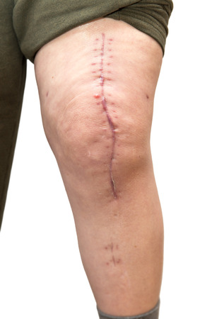 senior pain: knee with scar, isolated on white, after surgery with knee replacement