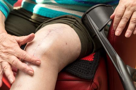 Alter Erwachsener mit Narbe am Knie, nach der Operation mit Knie-Ersatz, sitzt in einem roten Sessel Standard-Bild - 40295618