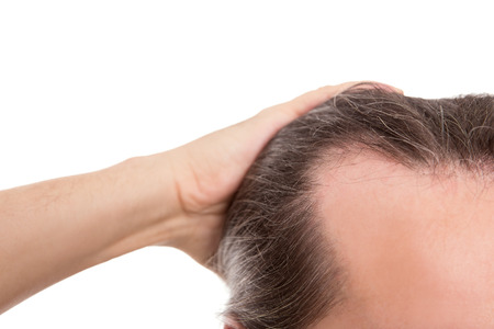 checking: man with receding hairline, closeup isolated on white, concept alopecia and baldness