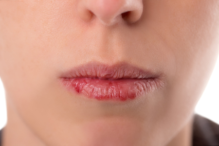 cut: Closeup woman´s face with brittle and dry lips, concept lip salve and wounds