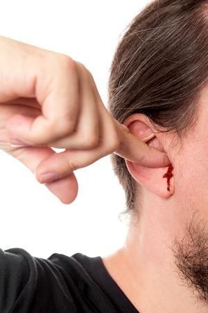 dolor de oido: portarretrato hombre que sostiene un dedo en la oreja con sangrado del oído, aislado en blanco, el ruido y las heridas concepto Foto de archivo