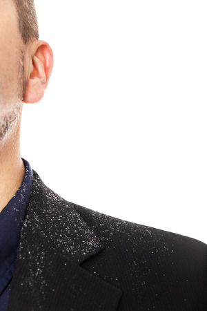 Close up from a man with a dandruff problem, isolated on white