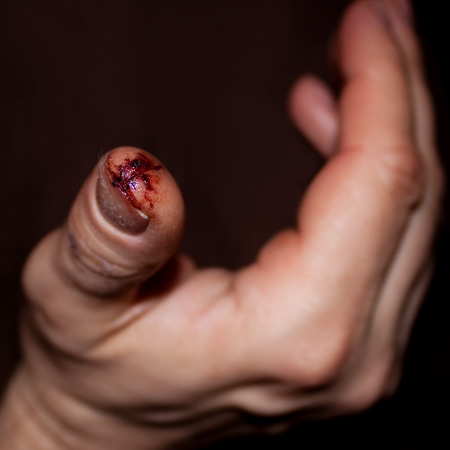 gash: closeup from a injured finger with dirty open cut, concept bleeding and injury