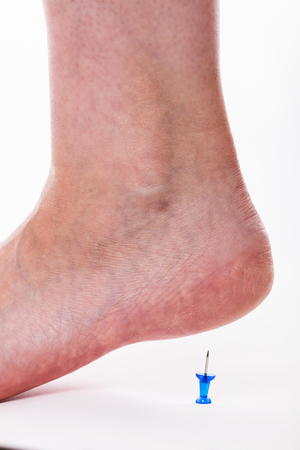fu�sohle: closeup of a female foot with a pin under her heels. concept calcaneal spur