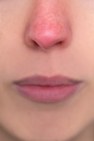 close up, young woman with a red nose, allergy, hypothermia or rosacea