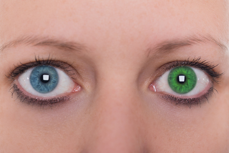 young woman with heterochromia iridum, two different eye color, contact lenses