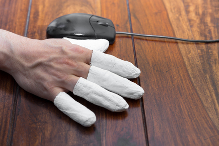 incapacitated: a  hand with PC mouse, concept incapacitated, handicapped