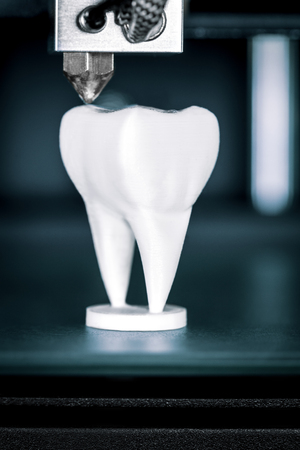 Using a 3D printer in dentistry, dentures are made by fused filament fabrication