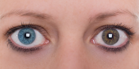 young woman with heterochromia iridis, blue and brown eye colour, conctact lenses, panorama Banco de Imagens