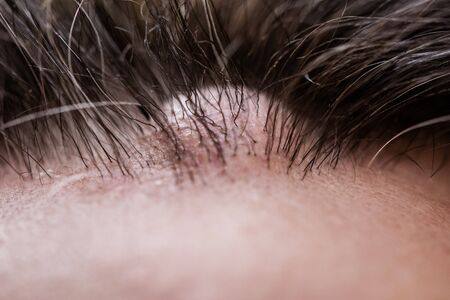 Nahaufnahme eines männlichen Kopfes mit einem Atherom oder Lipom Standard-Bild