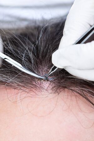 Doctor removing stitches with a pincette and scissors, wound suture on a man ´s forehead, closeup