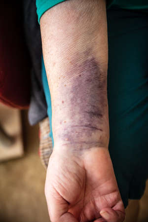 Senior woman with a bruise on the arm, hematoma or haematoma on skin, healthcare and medicine Stock fotó