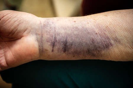 Senior woman arm with a bruise hematoma or haematome on skin, medicine and healthcare Stock fotó