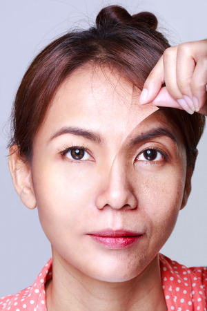 aged: Donna asiatica con il problema e la pelle pulita