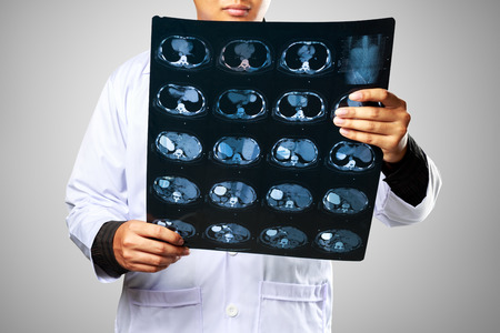 roentgen: Close up of male doctor holding xray or roentgen image