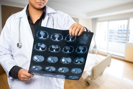 oral cancer: Close up of male doctor holding xray Stock Photo