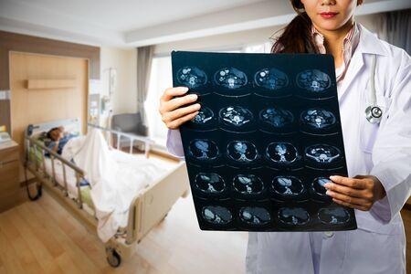 X 線フィルムを保持女医のクローズ アップ