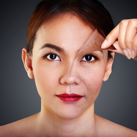 aging: Asian woman with problem and clean skin