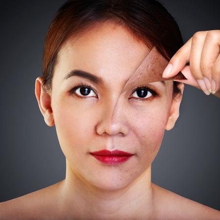 piel: Mujer asiática con el problema y la piel limpia