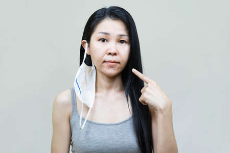 Young asian woman wearing medical face mask  her hand point at pimple on chin,Skin allergy,acne from wearing a mask. Banco de Imagens