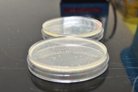 microbiologia: Muchos platos de Petri con medio de cultivo para laboratorio de microbiología. Foto de archivo