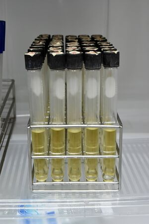 agar: agar in test tube rack for testing microbiology laboratory in factory Stock Photo