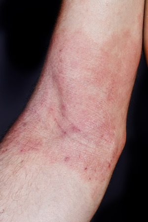 dermatitis: skin dermatitis in adult men Stock Photo
