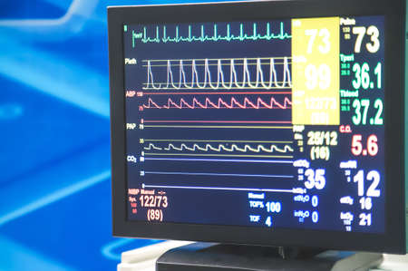 Close up of intensive care cardiogram monitor in a hospital