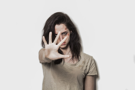 beaten up: Angry beaten up girl with wounds on the face asking to stop