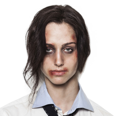 beaten up: Sad beaten up girl with wounds on the face looking at the camera with deep look