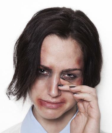 beaten up: Sad beaten up girl with wounds on the face looking and crying Stock Photo