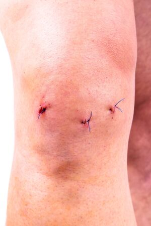 kneecap: Mans knee after arthroscopic surgery with stitches