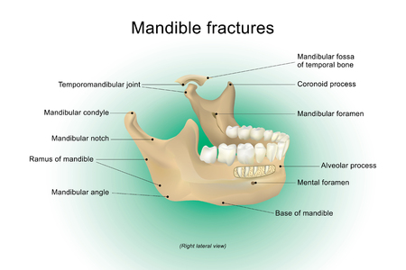 Mandible fractures is the largest, strongest and lowest bone in the face, Vector design, Arts, Illustration.
