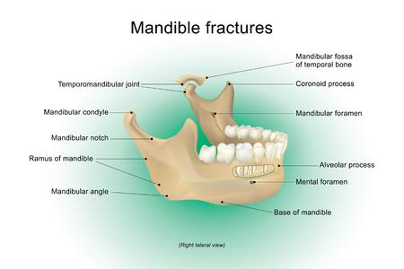 Fracturas de mandíbula es el hueso más grande, más fuerte y más baja en la cara, diseño del vector, Arte, Ilustración. Ilustración de vector