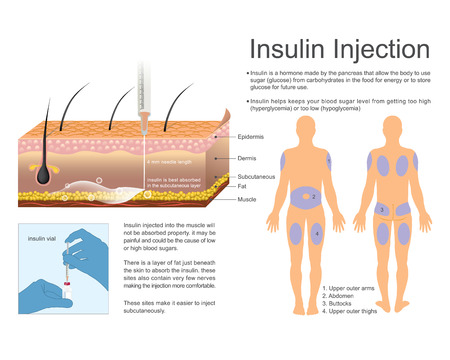 Insulin helps keeps your blood sugar level from getting too high hyperglycemia or too lowhypoglycemia.  Vector art, Illustration. Illustration