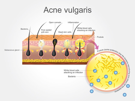 scarring: Acne vulgaris is a long-term skin disease that occurs when hair follicles become clogged with dead skin cells and oil from the skin. Acne is characterized by areas of blackheads, whiteheads, pimples, and greasy skin, and may result in scarring. Vector, il