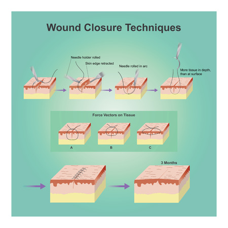 skin injury: A wound is a type of injury which happens relatively quickly in which skin is torn, cut, or punctured (an open wound), or where blunt force trauma causes a contusion.