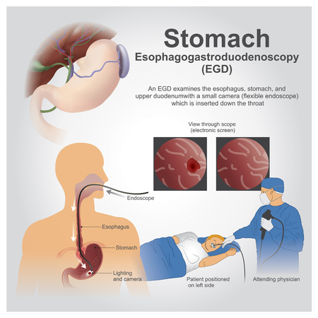 Esophagogastroduodenoscopy, also called by various other names, is a diagnostic endoscopic procedure that visualizes the upper part of the gastrointestinal tract up to the duodenum.
