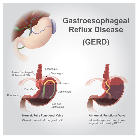 belch: Gastroesophageal reflux disease (GERD), also known as acid reflux, is a long term condition where stomach contents come back up into the esophagus resulting in either symptoms or complications. Vector, Illustration.