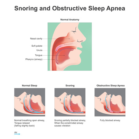 apnea: Snoring is the vibration of respiratory structures and the resulting sound due to obstructed air movement during breathing while sleeping. Vector, Illustration.