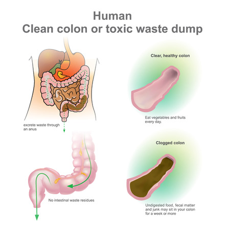 the transverse: Human clogged colon, healthy colon. Toxic waste dump. Excretory System. Vector, Illustration. Illustration