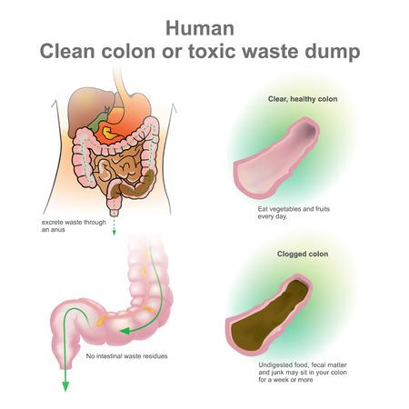 Human clogged colon, healthy colon. Toxic waste dump. Excretory System. Vector, Illustration. Illustration