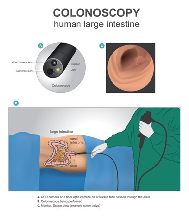 Colonoscopy is a test that allows your doctor to look at the inner lining of your large intestine. Human anatomy Illustration, Vector art.