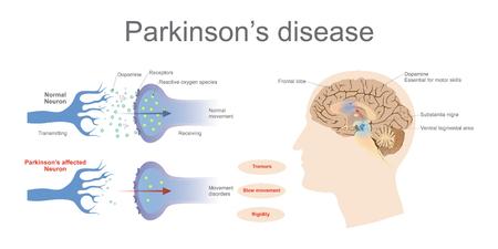 Niveaux de dopamine dans un neurone normal et un syndrome de Parkinson affecté. Vector Graphic Art, Illustration.