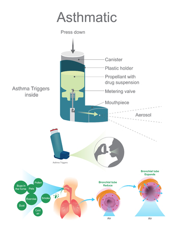 triggers: Asthmatic Airway Cells include lung fibroblasts, bronchial epithelial and bronchial smooth muscle cells. Vector graphic.